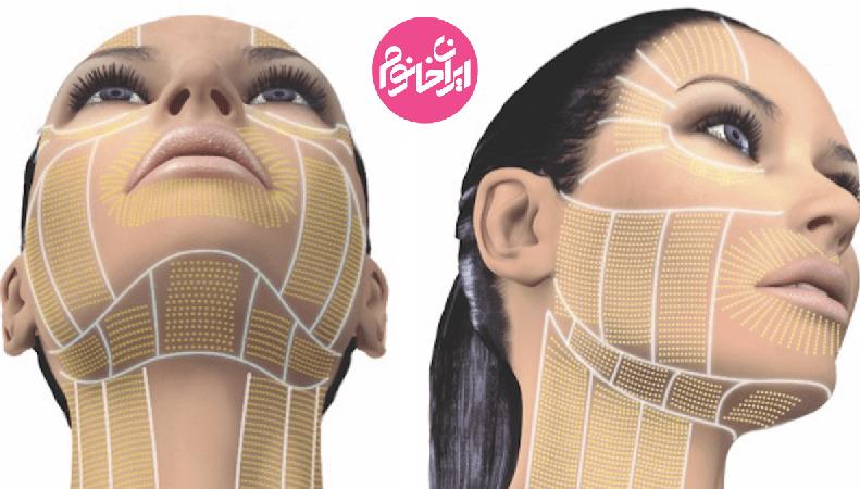 آشنایی با جدیدترین روش های جوانسازی پوست